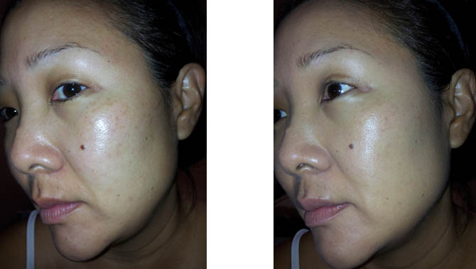 BOBBI BROWN BB CREAM BEFORE AND AFTER PHOTOS