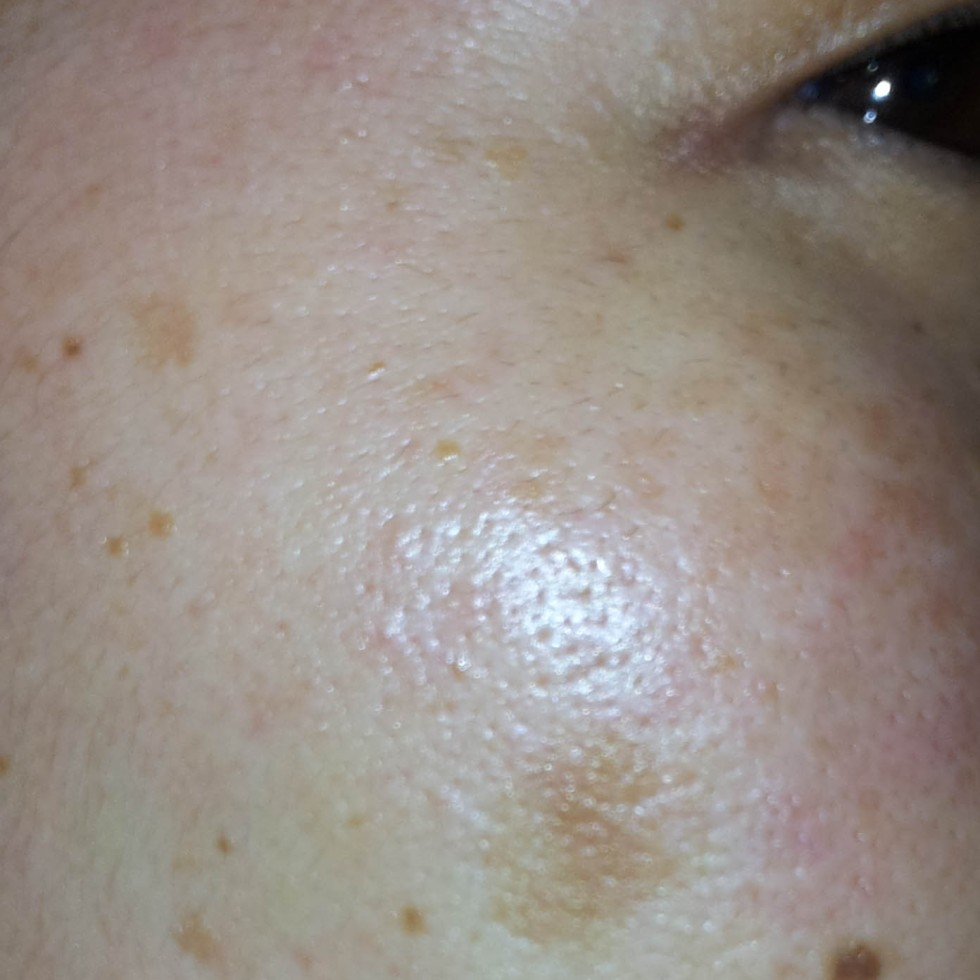 Nerium Results (Start) 070212 | Subject: Jenn Suzuki