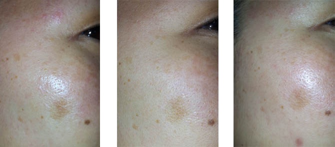 NERIUM AD 3 WEEK RESULTS