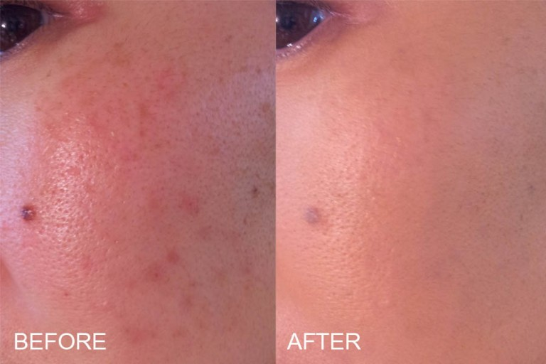 OXYGENETIX FOUNDATION BEFORE AND AFTER