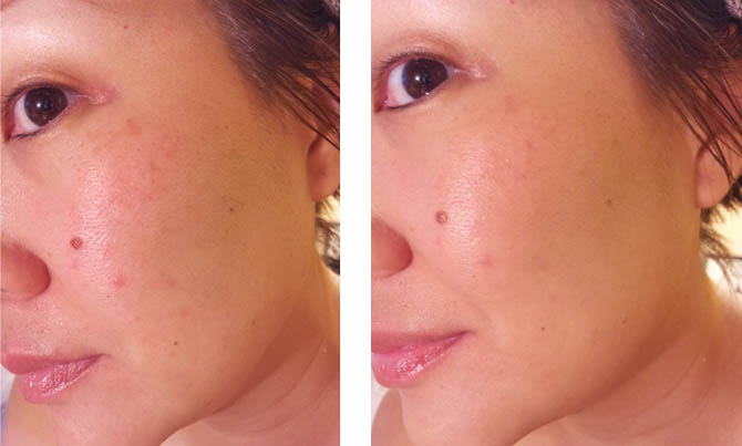 MARCELLE BB CREAM GOLDEN GLOW BEFORE AND AFTER