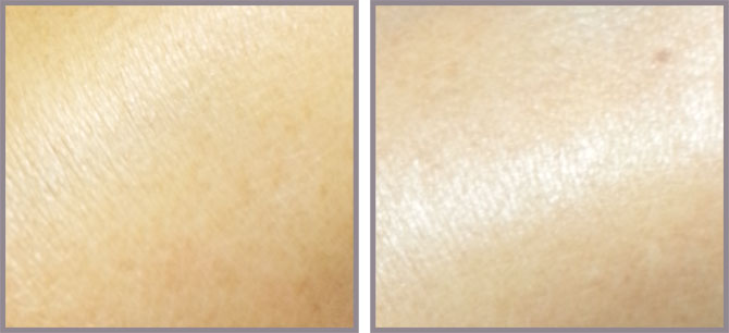 OMOROVICZA COMPLEXION CORRECTOR BEFORE AND AFTER