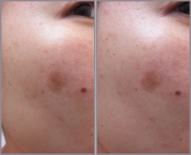 TRESKIN RX BEFORE AND AFTER