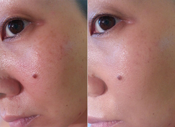 OMOROVICZA COMPLEXION PERFECTOR BB MEDIUM BEFORE AND AFTER