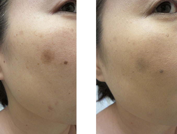 BE BARE SKIN SERUM FOUNDATION BEFORE & AFTER