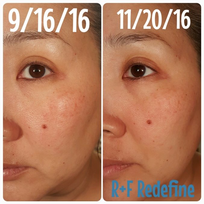 Rodan and Fields Redefine before and after